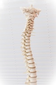 Scoliosis is defined by a sideways curvature of the spine