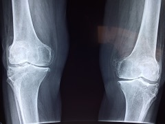 Knee pain can be caused by a variety of structures, such as the joints, ligaments and bones.