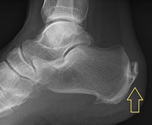 A physiotherapist or osteopath can diagnose you with an achilles tendinopathy