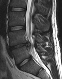 some cases of disc herniation will be referred for imaging such as MRI
