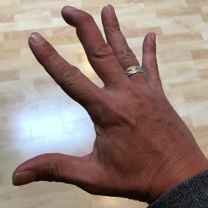 Third phalanx mallet finger injury