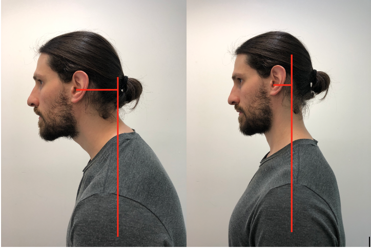 Photos of a  neutral spine or ideal posture compared to anterior head carriage or non-ideal posture