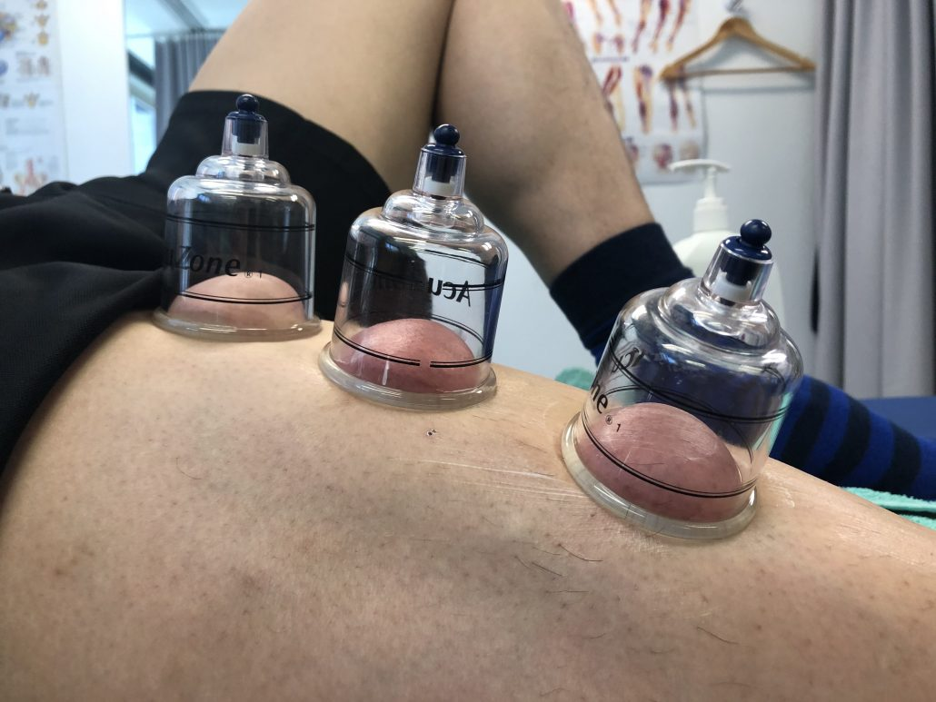 Cupping of the thigh or quadricep muscles to help with musculoskeletal pain and promote bloodflow