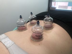 Cupping cups placed on the lumbar spine to help with acute low back pain