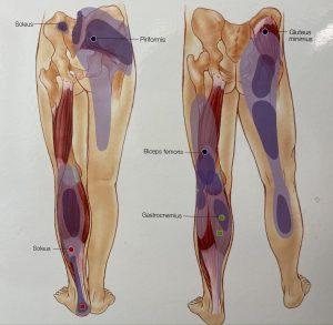 Gluteus Medius TrP referral pattern