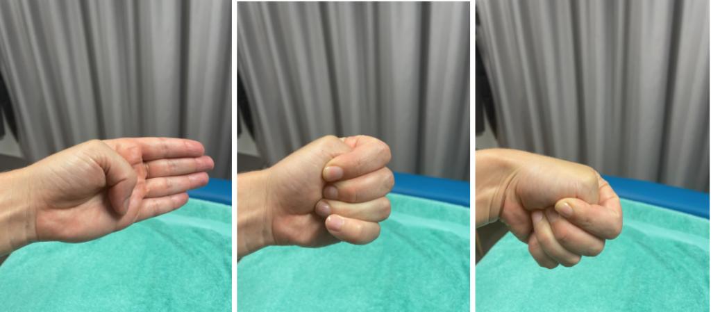 Finkelstein test hand positions De Quervains