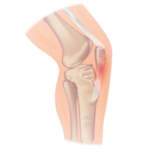 Anatomy patella tendinopathy