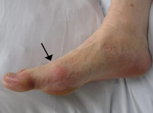 Gout real image