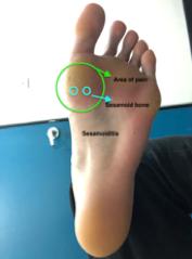 Sesamoid Pain diagram